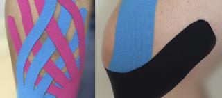 Bandagem Funcional para Drenagem Linfática