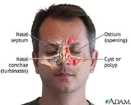 tips sinusitis