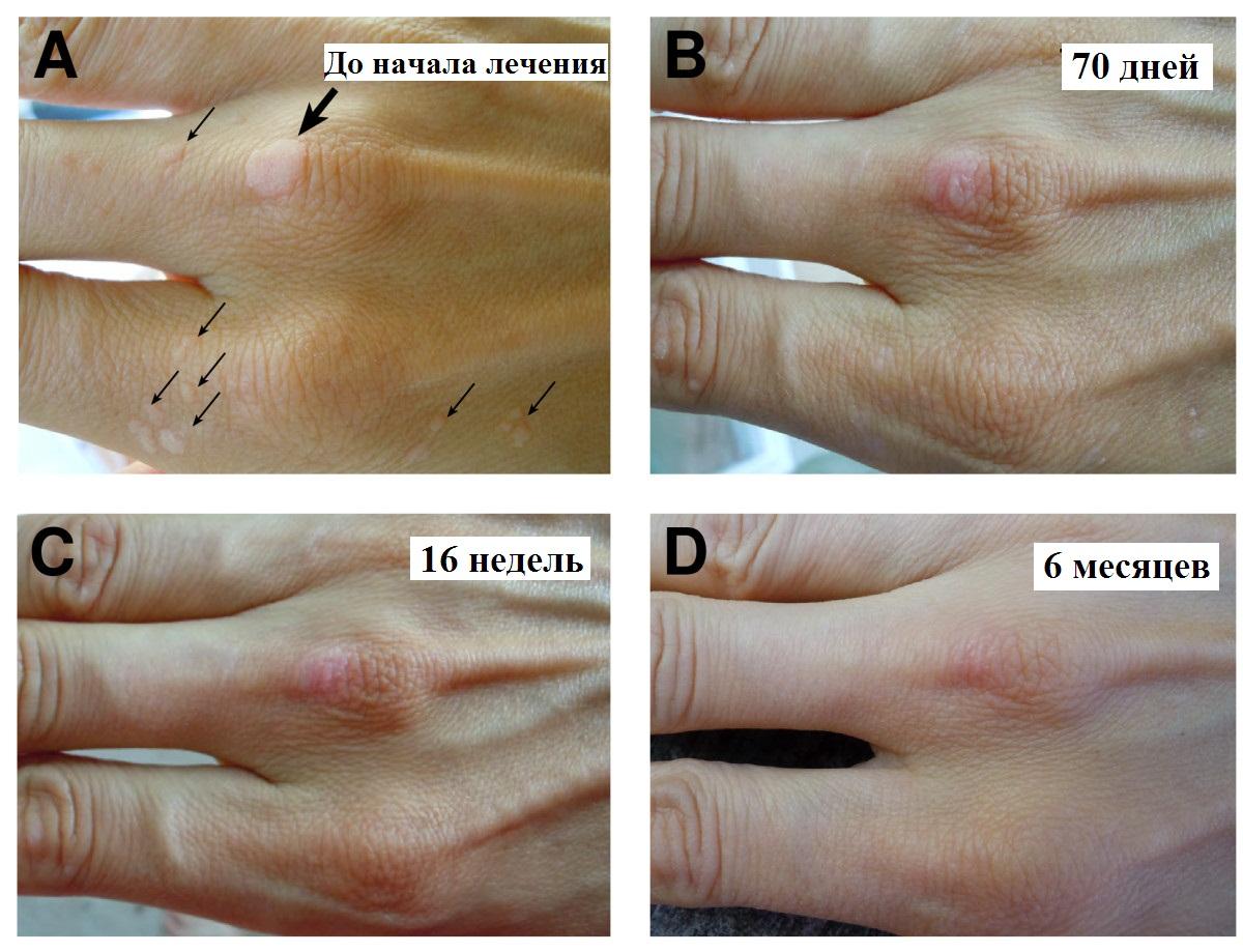 Какие заболевания могут вызвать папилломы