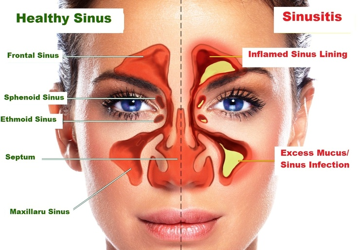 Natural Treatments For Sphenoid Sinusitis