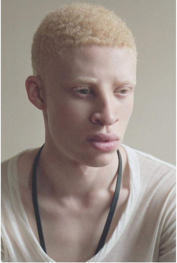El primer modelo albino
