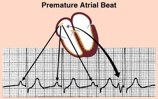 firefighter paramedic stories heart rhythms part 5 premature beats. Black Bedroom Furniture Sets. Home Design Ideas