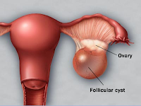 Cara Mengobati Keputihan Pasca Menopause