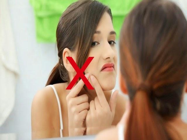 Bagaimana caranya merawat wajah yang sudah timbul jerawatnya