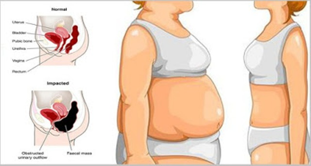 Say Goodbye To Belly Bloat  5 Simple Tips To Help You Flatten Your Stomach
