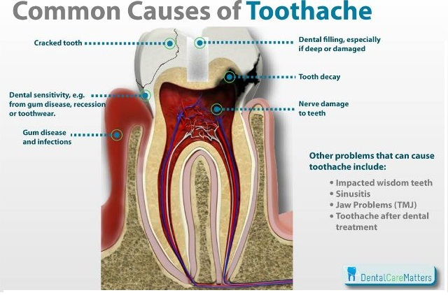 how-to-get-rid-of-a-toothache-naturally