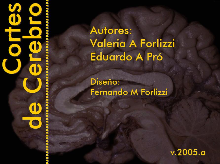 Anatomía 2012 - Ayudante Pablo Prado: Cortes de Cerebro