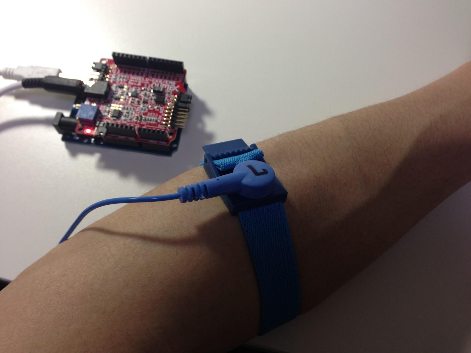 Shield Ekg Emg Pa Pro Arduino Ecg Heart Rate Monitor Circuit Prototype Youtube