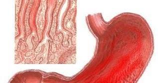 nursing diagnosis intervention: clinical manifestations of acute, Skeleton