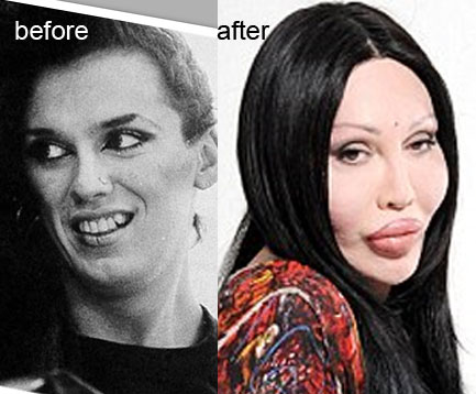 Pete Burns Plastic Before Surgery