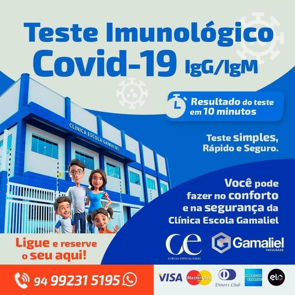 Inovação: Teste Imunológico Covid-19 com resultado em 10 minutos