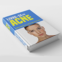 Ebook: Livre-se da Acne