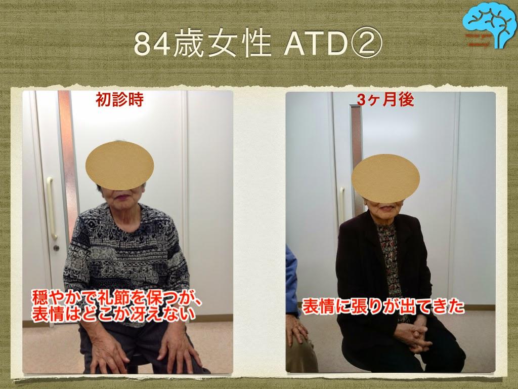 84歳女性のアルツハイマー型認知症。表情によい変化有り。