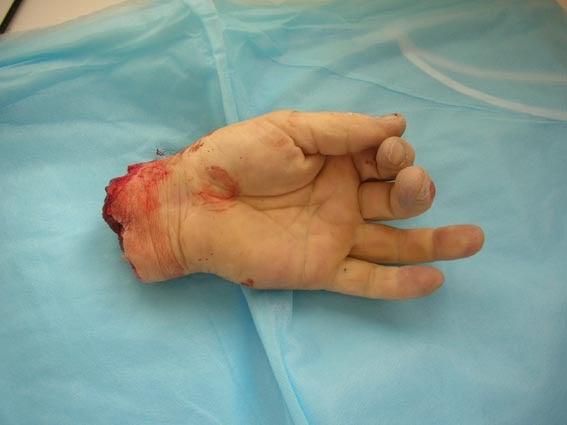 Didier goux habite ici une insupportable atteinte aux doigts de l 39 homme - Signification des bagues aux doigts homme ...
