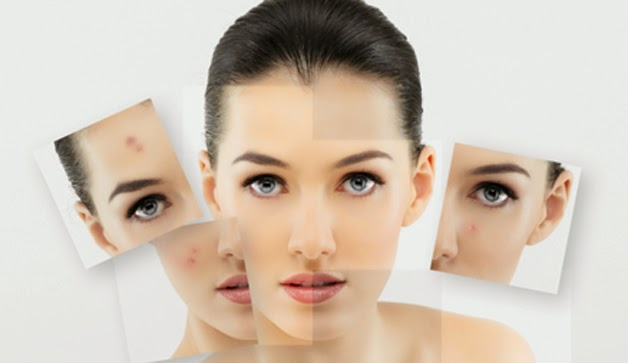 Perawatan Kulit Wajah Berminyak dan Berjerawat