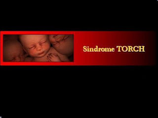 Sindrome de Torch
