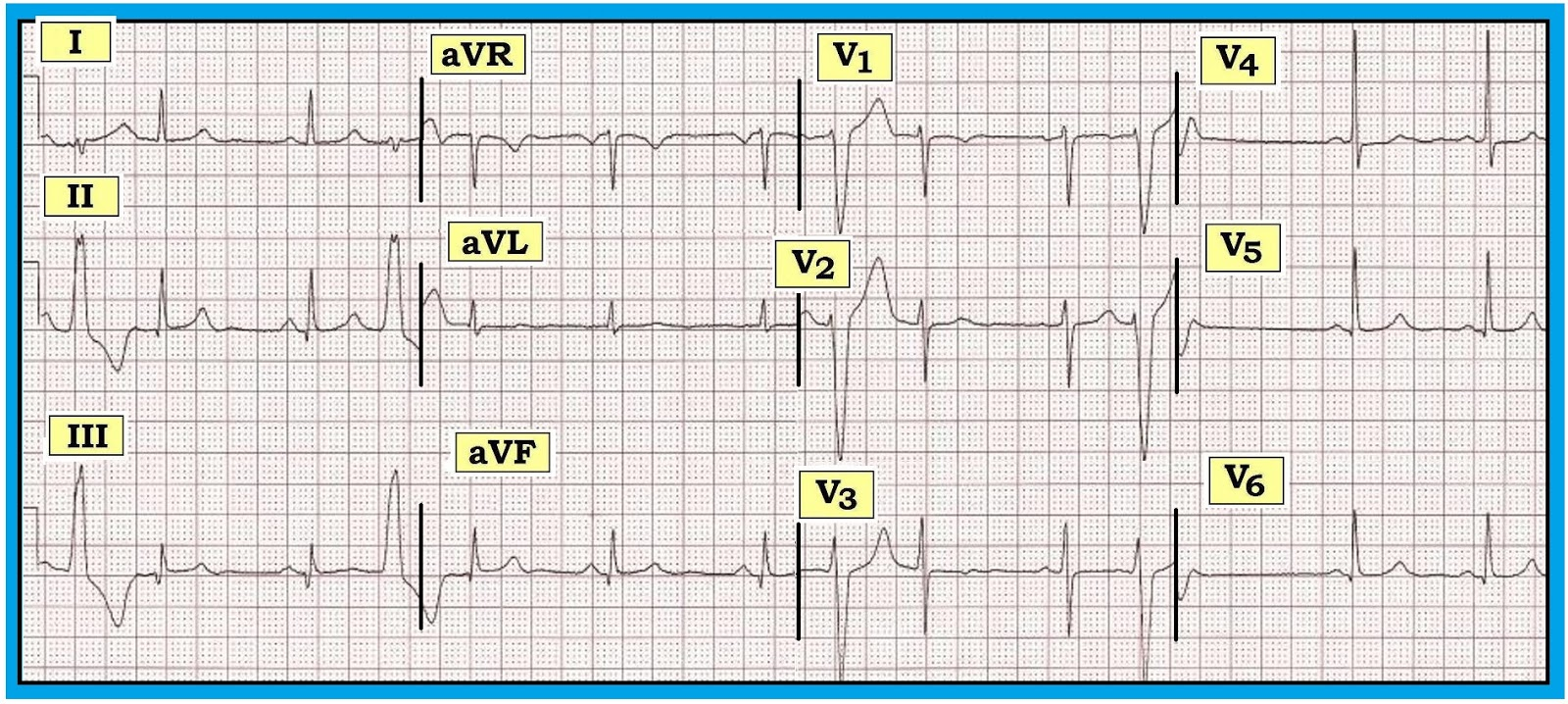 ecg recognition Posterior mi recognition oct 1st, 2015 manuel celedon the standard ecg lead placement cannot directly illustrate what is occurring in the posterior heart.