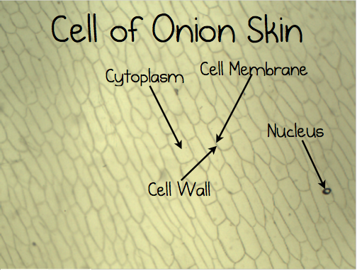 Labeled Onion Cell Under Microscope