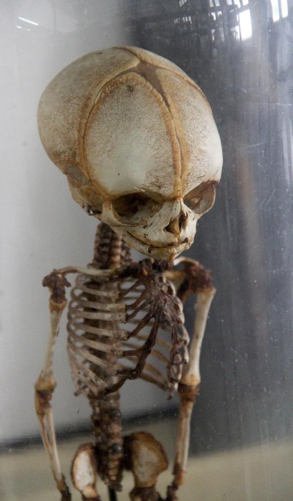 Morbid Anatomy: Congdon\'s Anatomical Museum, Bangkok, Photo Essay on ...