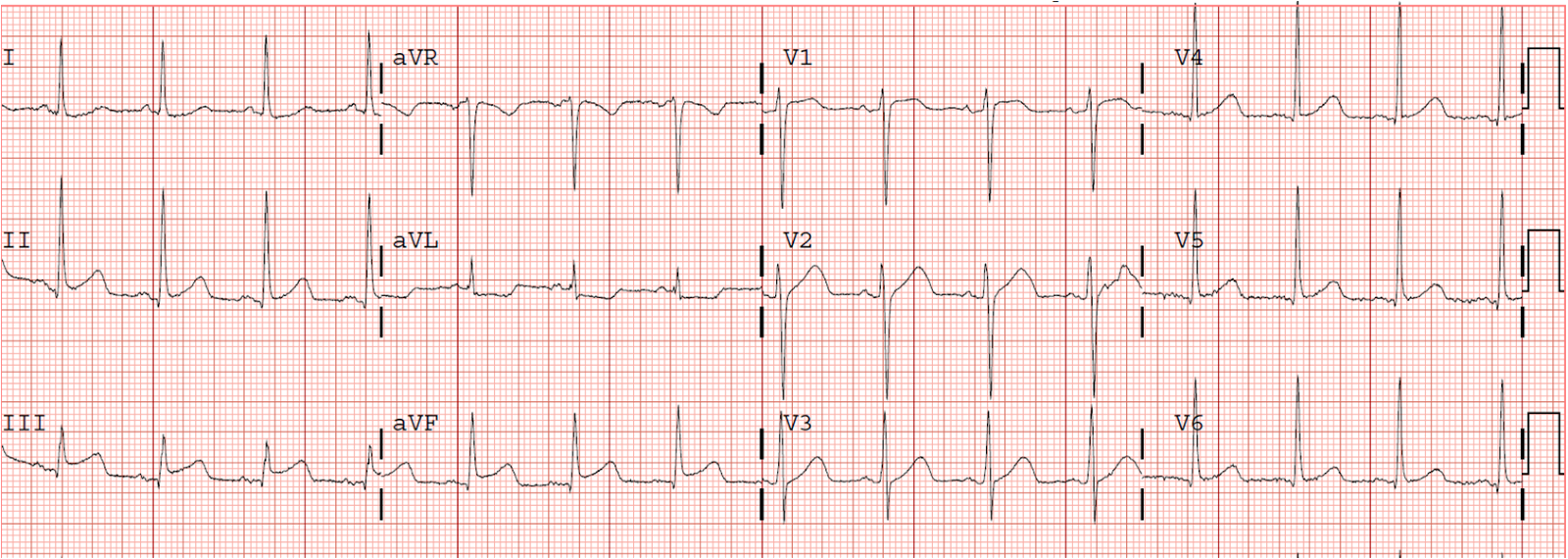 Dr. Smith's ECG Blog: 24 yo woman with chest pain: Is this STEMI ...