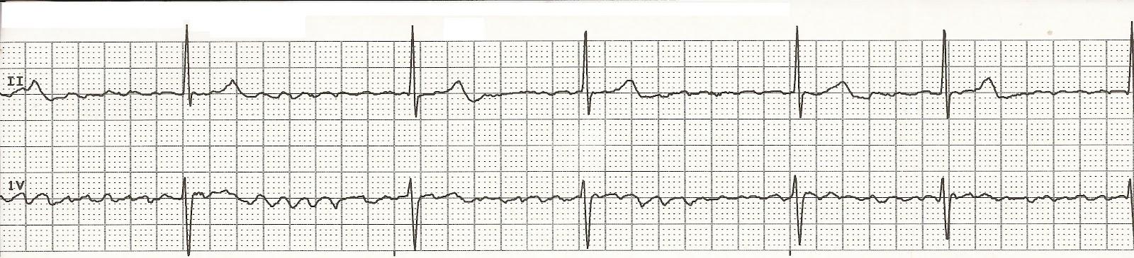 cvml_0080a_Atrial_Fibrillation_1920x1080 (00000)