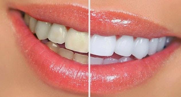 Cara Alami Membersihkan Karang Gigi Dengan Cepat Dan Mudah