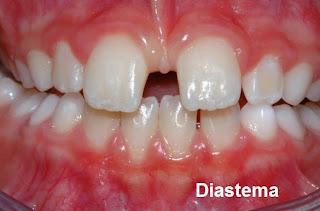 dentes abertos com espaço