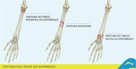 Fisioterapia - Recuperação de fraturas