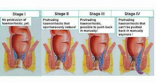 Grading of Hemorrhoid Disease