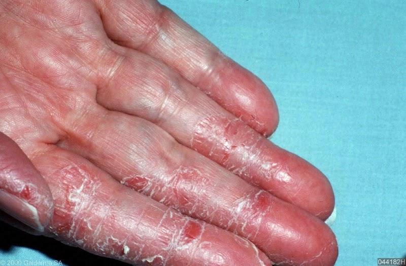 Pencuci inggan untuk allergi