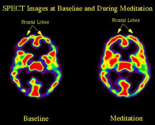 تغير النشاط الكهربي في الفص الجبهي أثناء التأمل