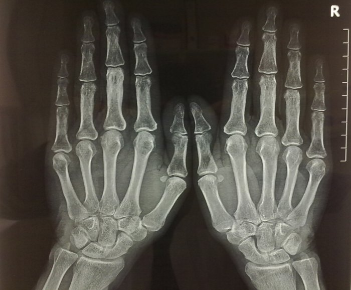 Precisión de la mano: Anatomía