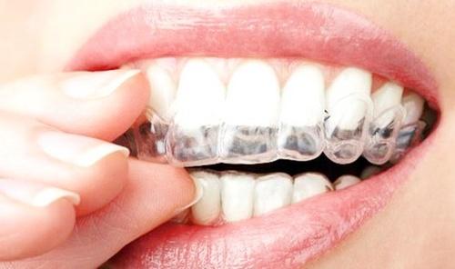 ferula para los dientes