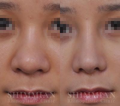 Rhinoplasty 11 24 12