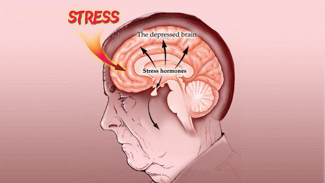 stress of choosing major Episodic acute stress is a recurring type of stress, happening over and over chronic acute stress if you don't see an end in sight, if you are facing something that has no way out, then you are likely to begin suffering from chronic stress.