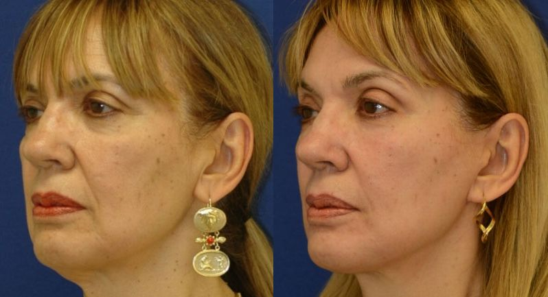 Do Face Yoga Exercise Remedies Work For Looking Younger The Answer To What Toning Is Able Your And Neck Here