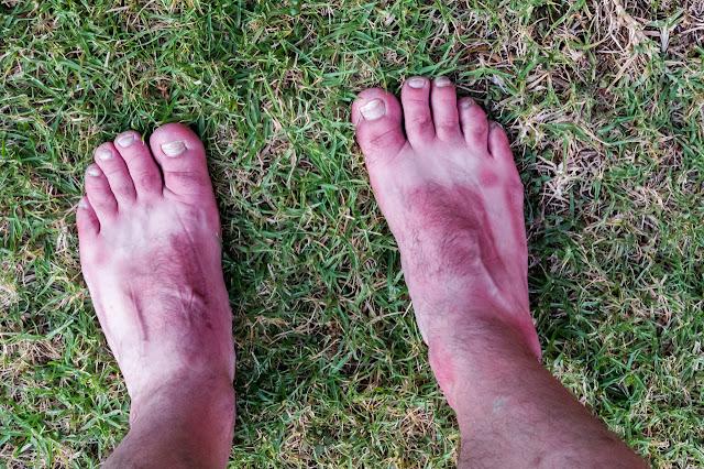 sunburnt feet