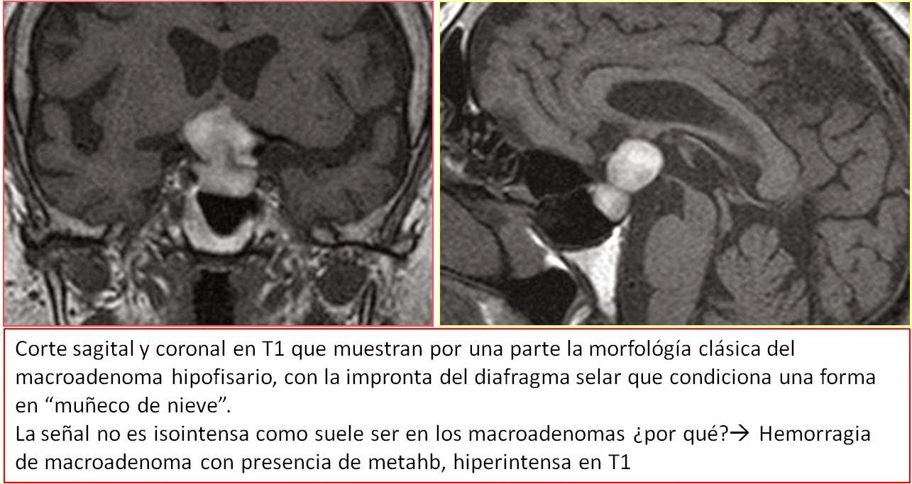 ESPE 203-2013: Patología de región selar: rol de imagenología