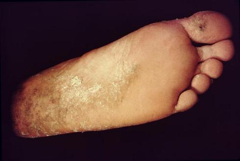 Como curar onihodistrofiyu de las uñas