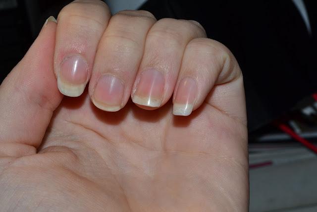 varför skivar sig naglarna