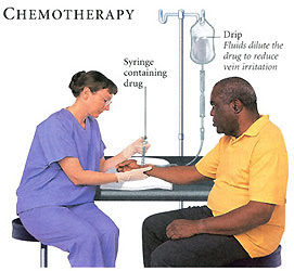 research paper on chemotherapy Research topics the following is a list of key areas being studied by va researchers click each topic for an overview of noteworthy past and current research, and a one-page printable fact sheet.
