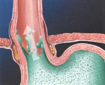 Bệnh trào ngược dạ dày thực quản - Thuốc điều trị