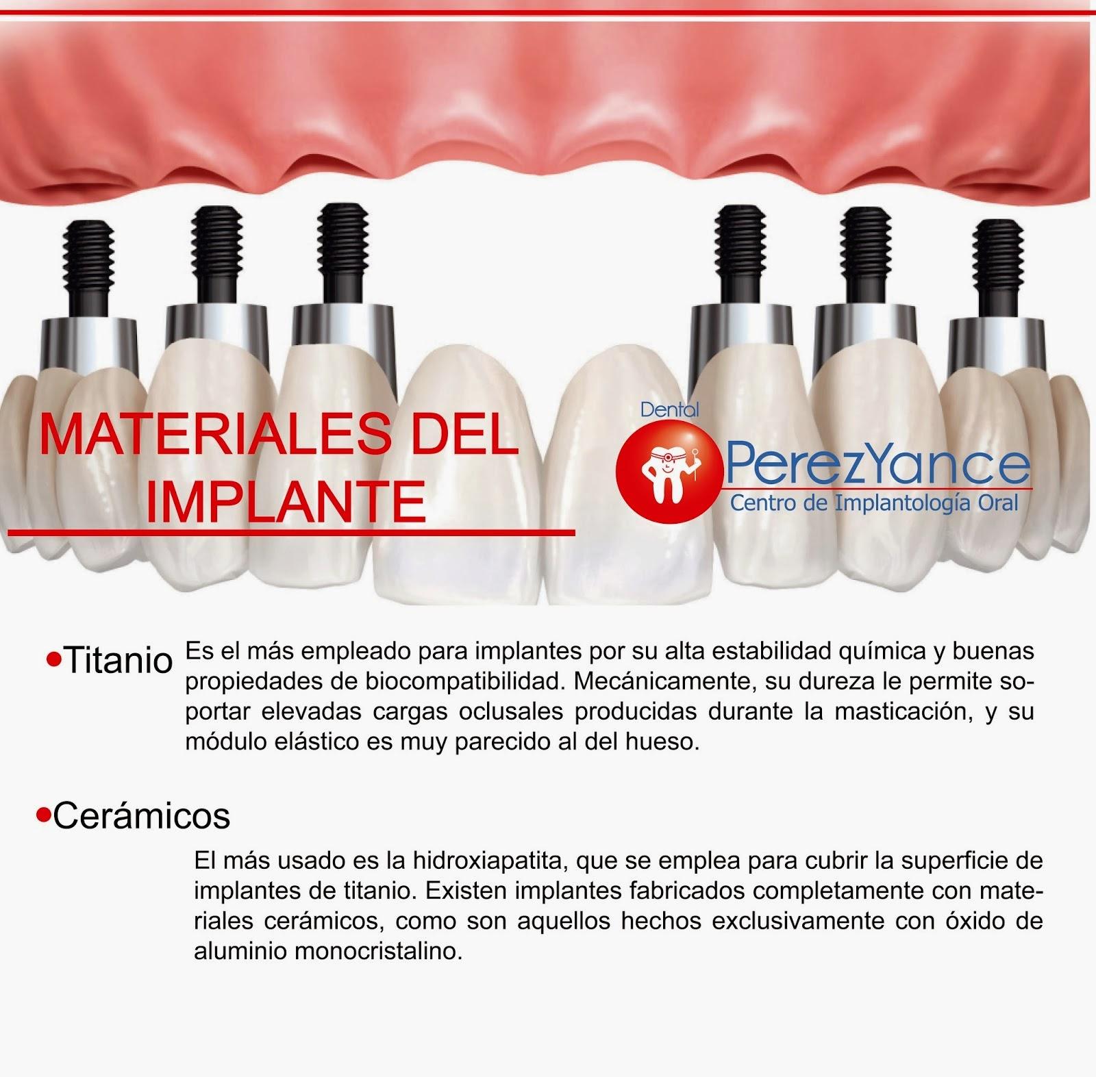 Implantes Dentales Peru
