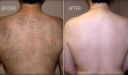 Super  Hair laser removal Washington