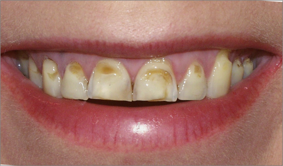pathological wearing away of tooth structure due to repetitive -2.bp.blogspot.com