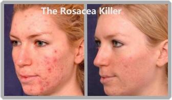 best treatment for redness on face