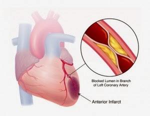 Obat Tradisional Jantung Koroner CardioPower Capsule