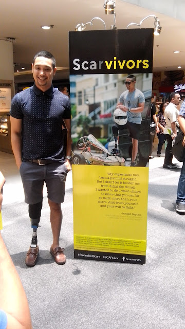 """My experience has been a painful struggle. But I didn't let it hinder me from doing the things I wanted to do. I want others to know that you can be so much more than your scars. Just trust yourself and your will to fight."" -Dwight Bayona, karter who lost his leg in an accident."
