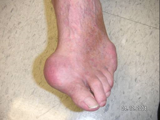 What Does Gout Look Like