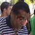 Pregador é agredido em praça pública no Brasil